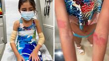 """""""Jamás tenemos que olvidar el peligro del mar"""": niña sufre ataque de medusas en playa de Texas"""