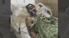 Sospechosos golpean brutalmente a hispano durante un incidente de 'hit and run' en San José
