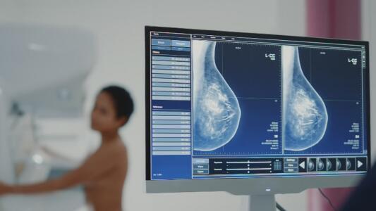 Novedoso tratamiento promete ayudar a pacientes con un tipo de cáncer de mama muy agresivo