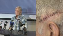 """""""Me sentí asesinado"""": hispano de 70 años atacado en Miramar revela detalles de la agresión"""