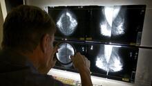 Ofrecen mamografías gratis en varias ciudades de Arizona