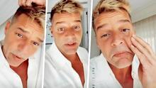 Ricky Martin responde a los comentarios sobre el cambio de su rostro y señala a un suero como la posible causa