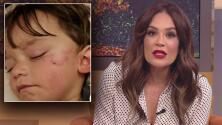 """""""El susto de su vida"""": Karla Martínez por la mordida que la mascota de Sherlyn le dio a su hijo en el rostro"""