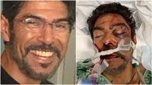 """""""Sufrió múltiples fracturas en su cara"""": sospechosos golpean a padre hispano durante un 'hit and run'"""