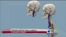 Cirugía de trasplante de cabeza