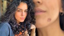 """""""Se llevó la piel"""": hija de Biby Gaytán y Eduardo Capetillo se quemó el rostro mientras cocinaba"""