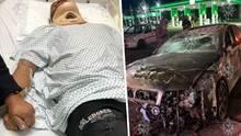 """""""Está hecho garras el auto"""": Marco Estrada sufre grave accidente"""