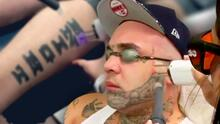 ¿Has visto cómo se quita un tatuaje? Se ve doloroso