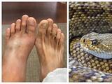 Esto es lo que debes hacer si eres mordido por una serpiente venenosa