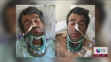Identifican a hombre que estaba en el hospital tras ser atropellado en Sacramento