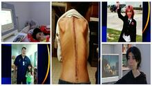 📸La joven venezolana con escoliosis que lucha todos los días por vivir y que sueña con ir a la universidad
