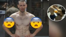 'Popeye humano' sufre reventón de sus bíceps durante entrenamiento para pelea de MMA