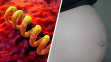 La sífilis en mujeres embarazadas puede matar a sus bebés, esto dice experta