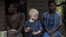 Albinos son mutilados en Tanzania