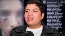 Remmy Valenzuela reaparece en redes con un mensaje tras ser acusado de golpear a su primo y a su novia