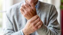 ¿Dolor en las articulaciones? Estos son los santos remedios de Dr. Juan para la artritis