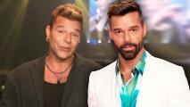 ¿Ricky Martin se hizo algo en la cara? Sus fans están en shock