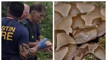 """""""Sentí un dolor intenso"""": Hombre fue mordido por una serpiente venenosa en Texas y narra lo que vivió"""