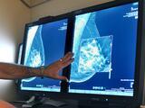 Chicanos Por La Causa ofrece mamografías gratis a las residentes de Phoenix