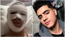 Así quedó Omar Yubeili, actor de Mi Corazón Es Tuyo, después de sufrir quemaduras en el rostro
