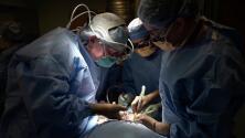 Por primera vez en EEUU realizan con éxito un trasplante de un riñón de cerdo a un humano