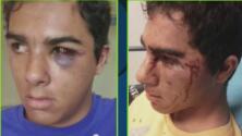"""""""Pensaba que lo iban a matar"""": Madre de un adolescente autista brutalmente golpeado por la policía"""
