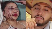 """""""Dijo que me iba a matar"""": el drama de una hispana víctima de violencia doméstica"""