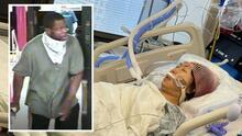 Muere mujer que quedó en coma tras caer de las escaleras del subway durante un intento de robo
