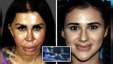 Descubren a falsas cirujanas plásticas tras muerte de mujer por levantamiento de glúteos