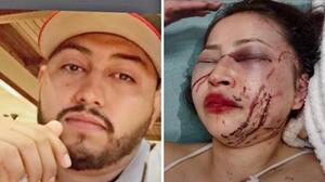 hispana denuncia ataque de su pareja y pide ayuda para que lo arresten