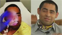 """""""Se estaba saliendo de la cara"""": joven denuncia que perdió un ojo por culpa de la policía en Los Ángeles"""