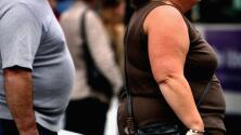 Manga gástrica endoscópica: proceso que toma menos de una hora y que ayuda a bajar de peso