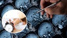 Dormir mal podría aumentar el riesgo de Alzheimer