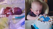 Tenía 0% de supervivencia cuando fue considerado el bebé más prematuro del mundo. Ahora cumple su primer año de vida