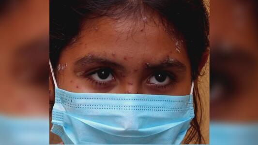 Registran brote de varicela en un albergue de migrantes en Tijuana, México