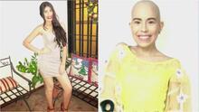 Ayuda de Impacto: A esta joven con cáncer tuvieron que amputarle una pierna