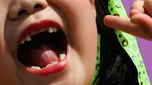 La Feria de la Salud Dental brindó servicios gratuitos a los niños de Los Ángeles