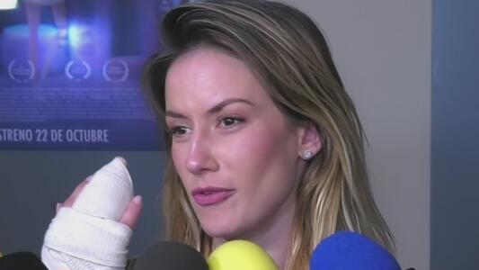 """Altair Jarabo narra el accidente que la llevó a cirugía por una mano """"hecha papilla"""""""