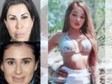 Buscan más víctimas de dos falsas cirujanas plásticas que causaron la muerte de una mujer en Los Ángeles