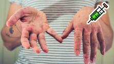 Crece preocupación por aumento de casos de sarampión en EEUU