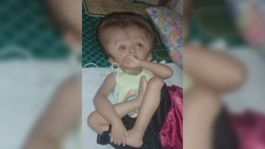 Muere Abraham de Jesús, el niño con hidrocefalia que luchaba por su vida