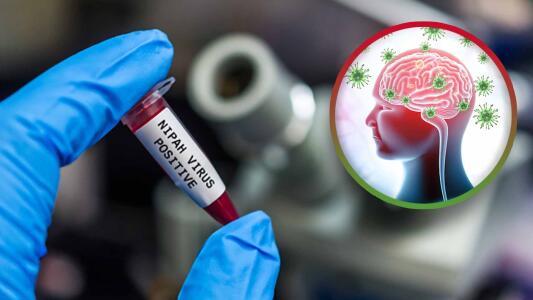 """""""Tiene una letalidad del 80%"""": Doctor explica qué es el virus Nipah y  porqué se cree fue manipulado genéticamente"""