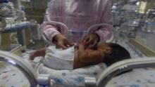 ¿Están los bebés latinos en riesgo? Aumentan considerablemente los casos de sífilis entre recién nacidos en Los Ángeles