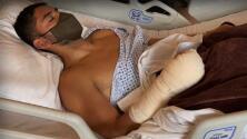 Jesús Corona fue operado satisfactoriamente de fractura en la mano