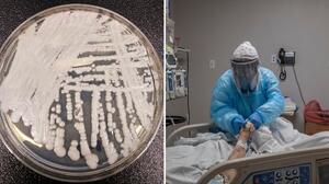 Hongo resistente a fármacos se extendió en 2 ciudades de EEUU