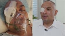 """""""Salía pura sangre"""": hispano denuncia que perdió un ojo por heridas que le propinó un policía"""