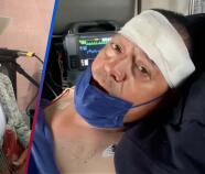 Salvan su vida de milagro: Los Cadetes de Linares de Homero Jr. sufren aparatoso accidente