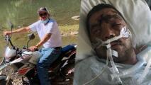 Inmigrante lucha por su vida tras ser golpeado durante robo en Landcaster
