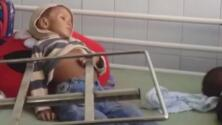 Los niños, los rostros de las mortales víctimas por la escasez de alimentos en Venezuela
