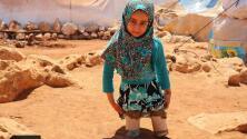 Esta niña siria debe usar trozos de tubería por piernas porque su padre no puede conseguirle unas prótesis